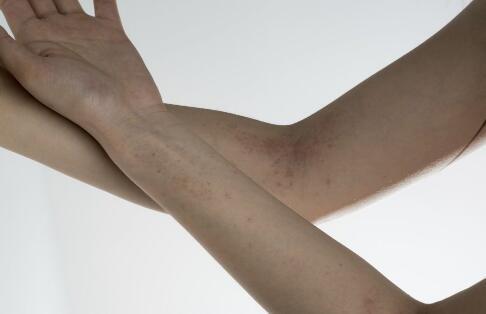 经常化妆如何预防荨麻疹?